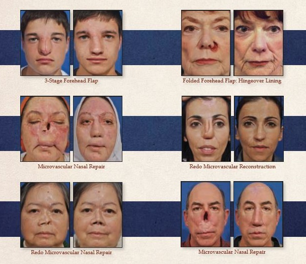 Nasal Reconstruction Cases Before & After Photos